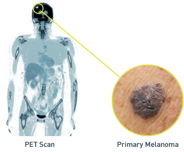 PET scan demonstrating and close-up of Stage IVM1a melanoma