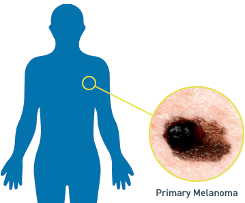 Close-up of Stage IIIC melanoma lesions; Alt tag: PET scan demonstrating Stage IIIC melanoma