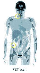 PET scan demonstrating Stage IVM1a melanoma